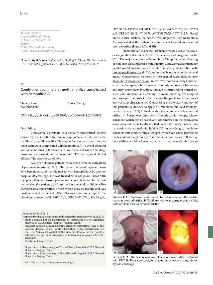 HPV genotipare în leziune/raclat (regiunea anogenitală și orală) (analiza) - Synevo