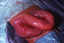 helminth infection signs)