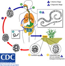 helminth parasitic infections symptoms