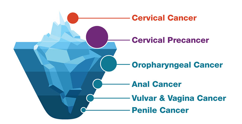 Does hpv always become cancer