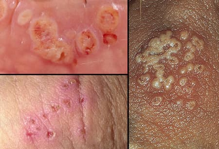 hpv and genital herpes the same