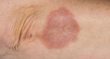 hpv and granuloma annulare)