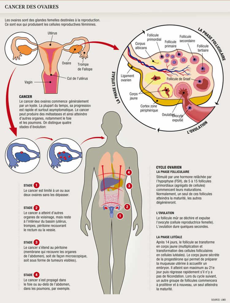 Papillomavirus et douleur bas ventre. www.FerestreMansarde.ro
