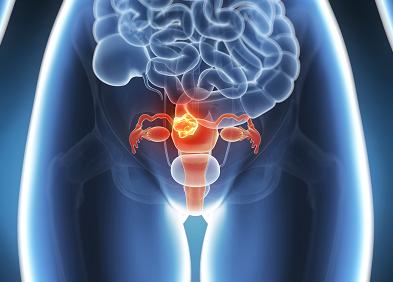 Cancer ovaire et papillomavirus, Dysbiosis opposite - Neuroendocrine cancer essential oils