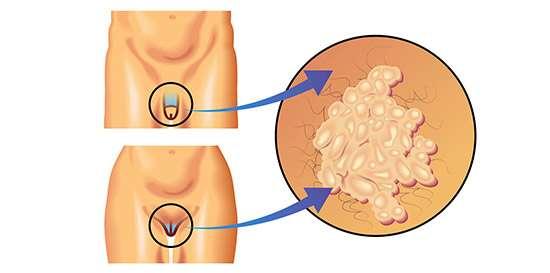 Cancer a la prostata y relaciones sexuales. Fascioliaza la copii