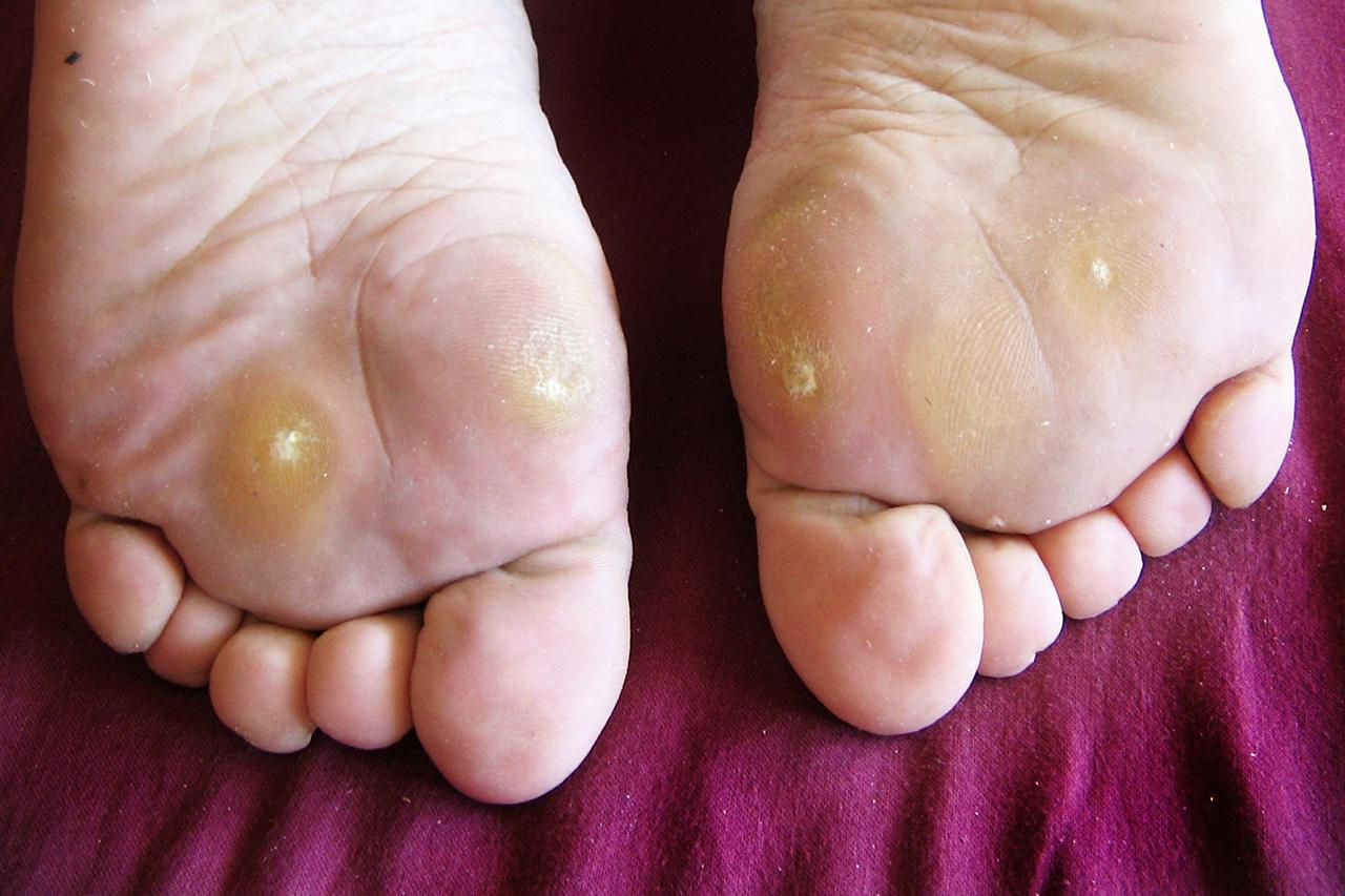 hpv foot blisters)