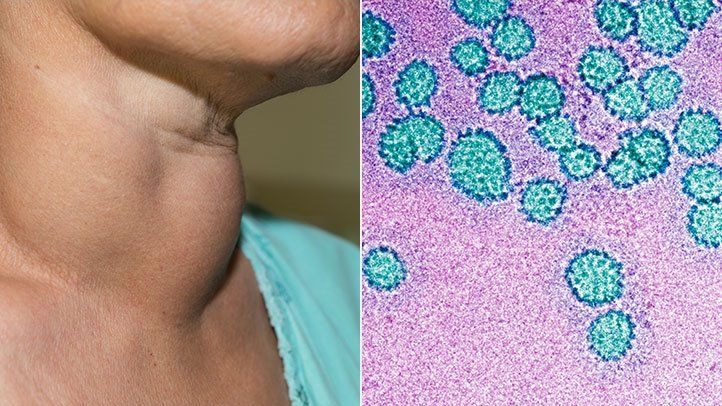Hpv related head and neck cancer symptoms - info-tecuci.ro