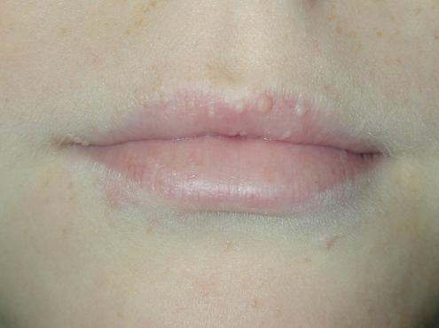 hpv lip wart treatment