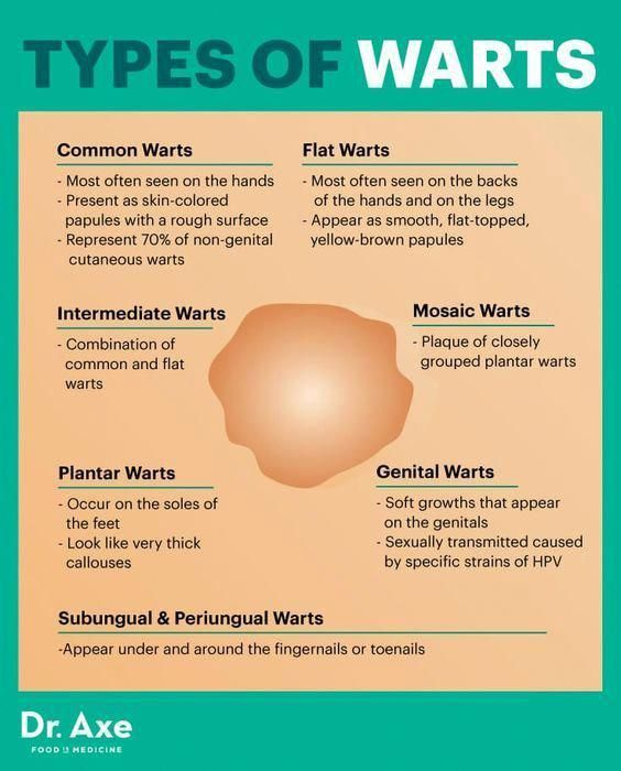 hpv not warts