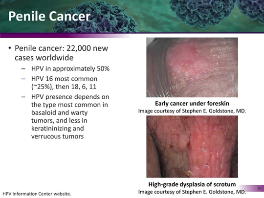 Hpv and penile cancer. Hpv cause penile cancer