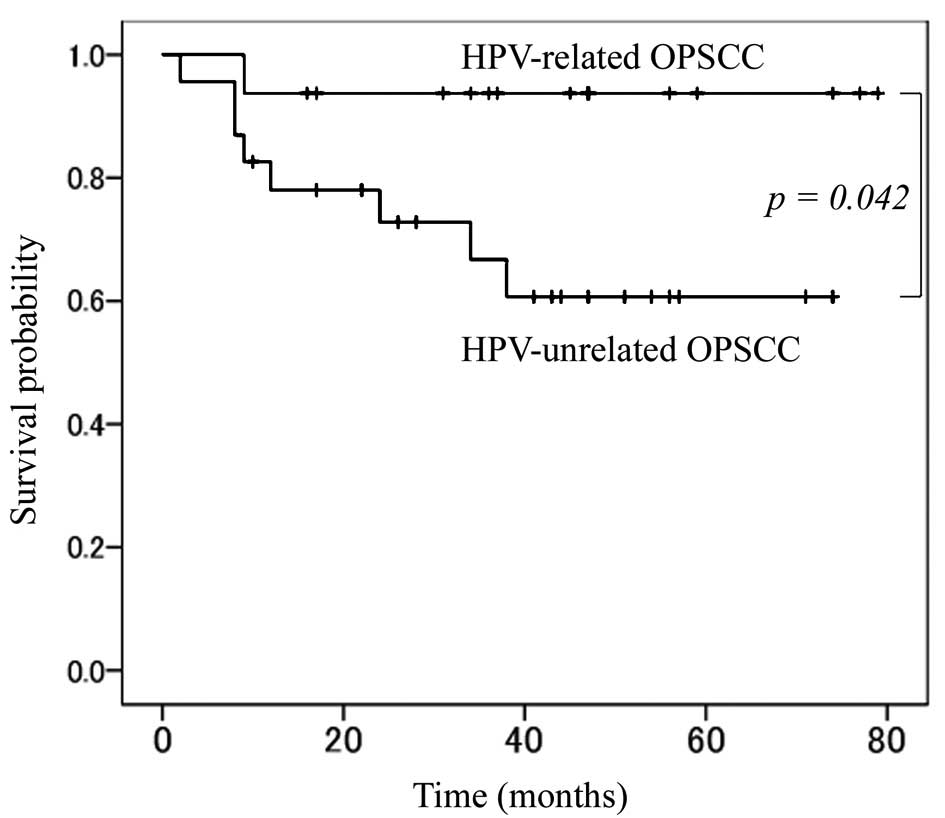 Hpv oropharyngeal cancer survival rate, Throat cancer caused by hpv has better survival rate