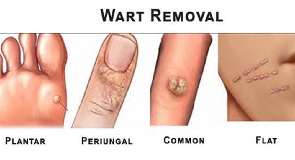 hpv that causes warts cause cancer care este medicamentul pentru condiloame
