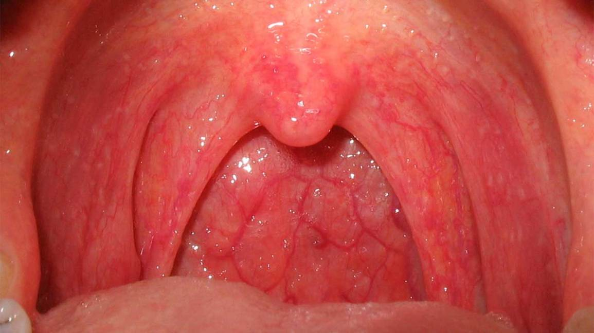 Hpv on tongue nhs