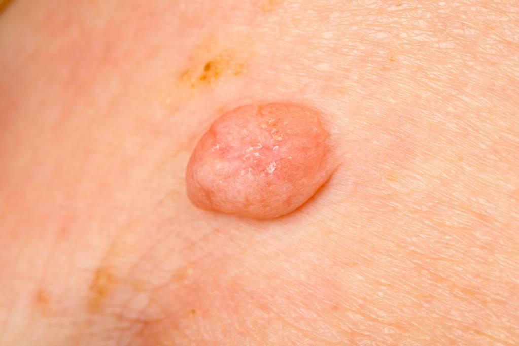hpv virus und feigwarzen squamous cell papilloma histopathology