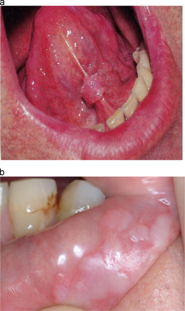 human papilloma the tongue)