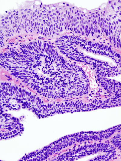 Inverted papilloma and hpv, Cel mai bun tratament sigur de paraziți