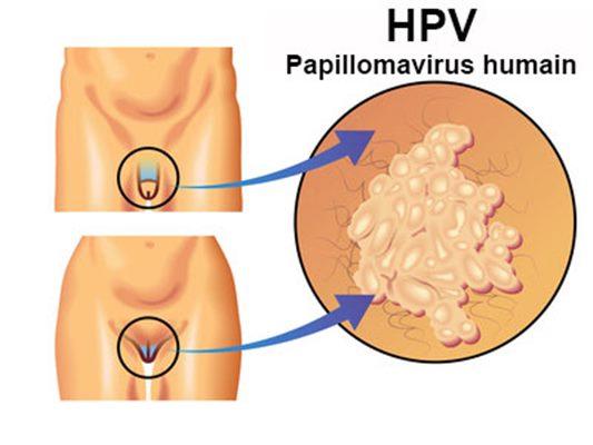 l papillomavirus symptome