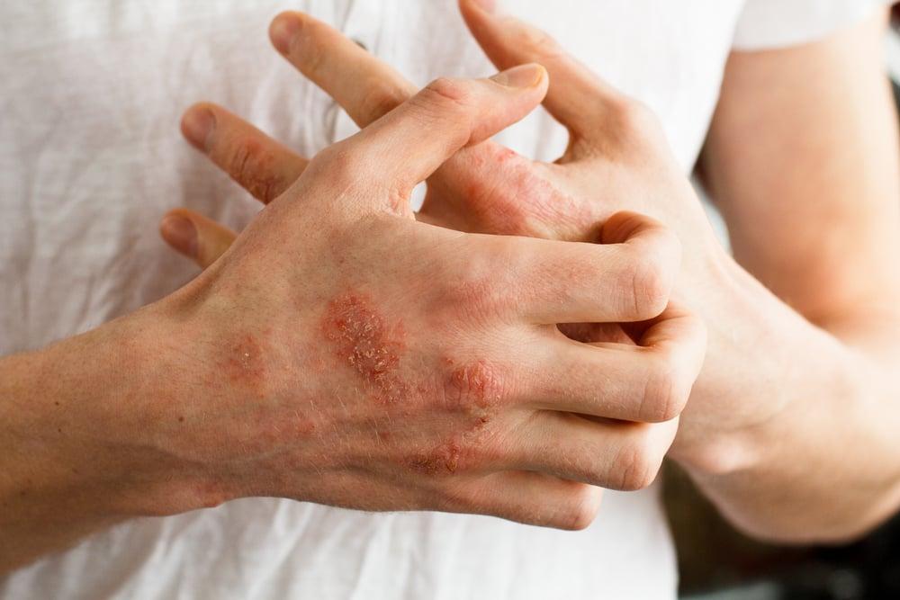 leziuni între degetele de la picioare cum se tratează)