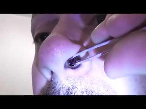 metoda de tratament cu vierme pin simptome papiloma virus