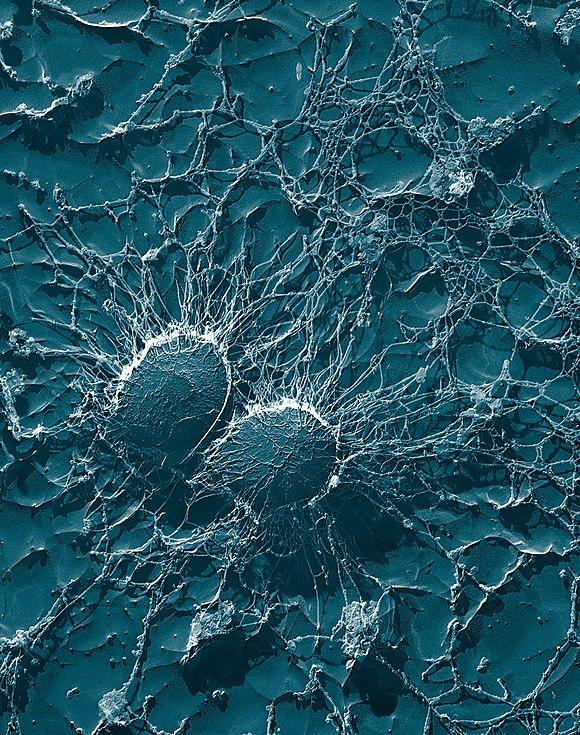 Papilloma krema za kondilome - Hpv sore neck - Papilloma krema za kondilome
