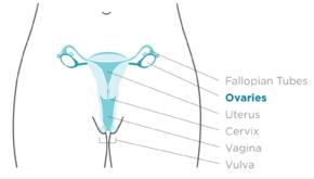 ovarian cancer abdominal drain