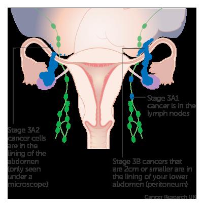 ovarian cancer lymph nodes