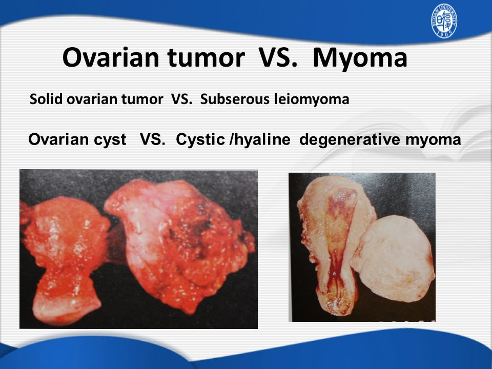 ovarian cancer vs fibroids)
