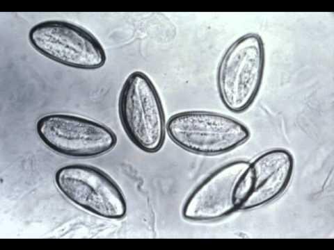 scapa de paraziti cu scortisoara nume de pilule parazite