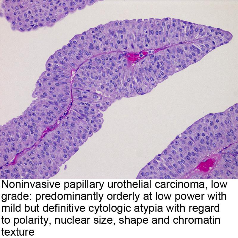 papillary urothelial mean)