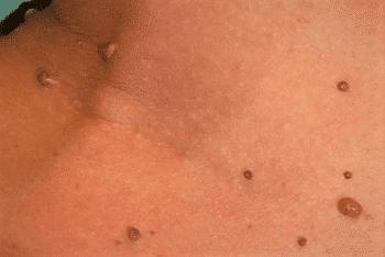 Terapia helmintica. Primary Sidebar