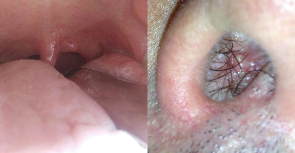 papilloma squamoso bocca