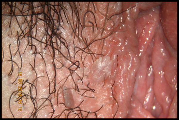 papilloma virus lesioni precancerose)