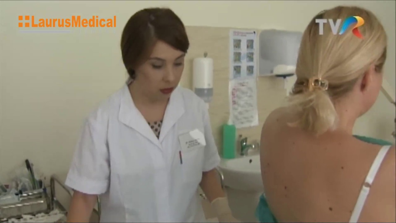 Laser înlăturare papiloame, nevuși, veruci