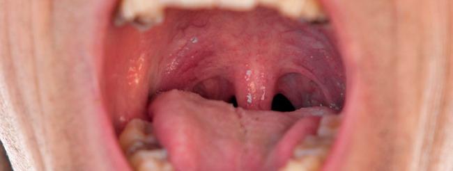 papiloma en garganta o boca)