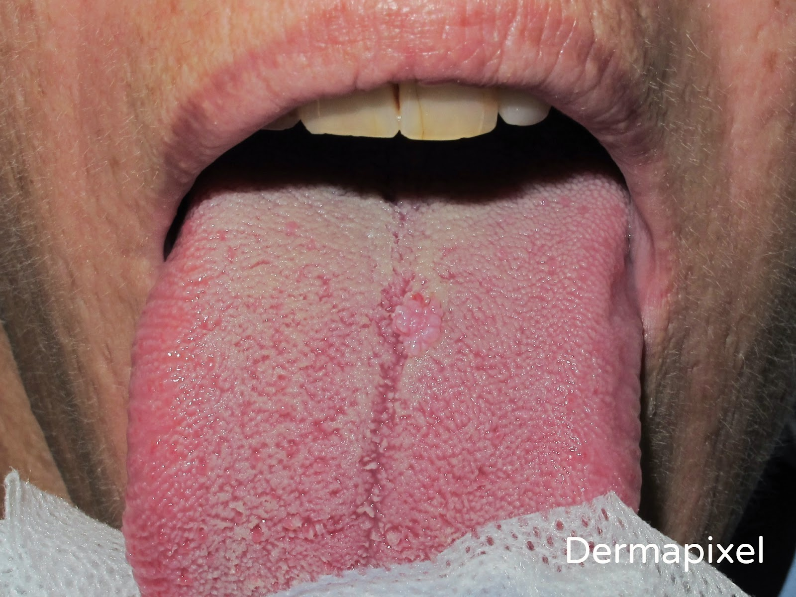papiloma en la boca duele