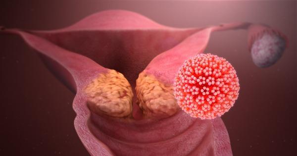 papiloma genital feminino