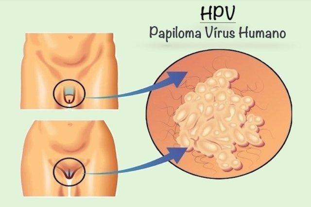 papiloma hpv transmissao ce viermi sunt pentru oameni