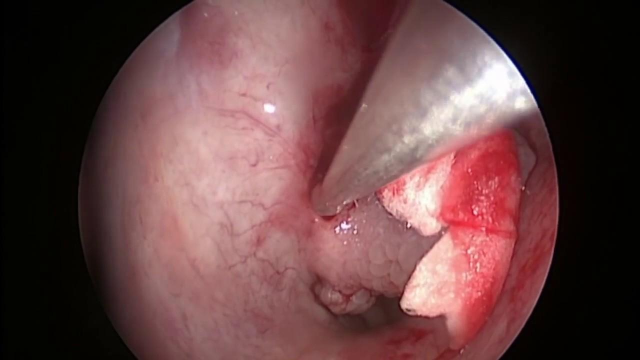 papiloma nasal benigno)