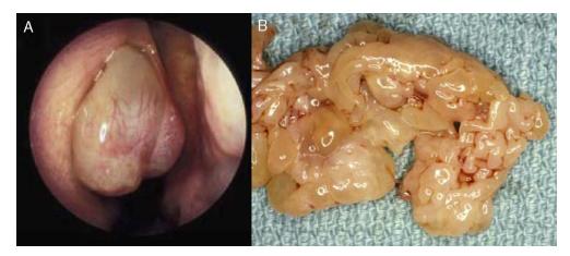 schistosomiasis epidemiology paraziti crescuti ai eozinofilelor