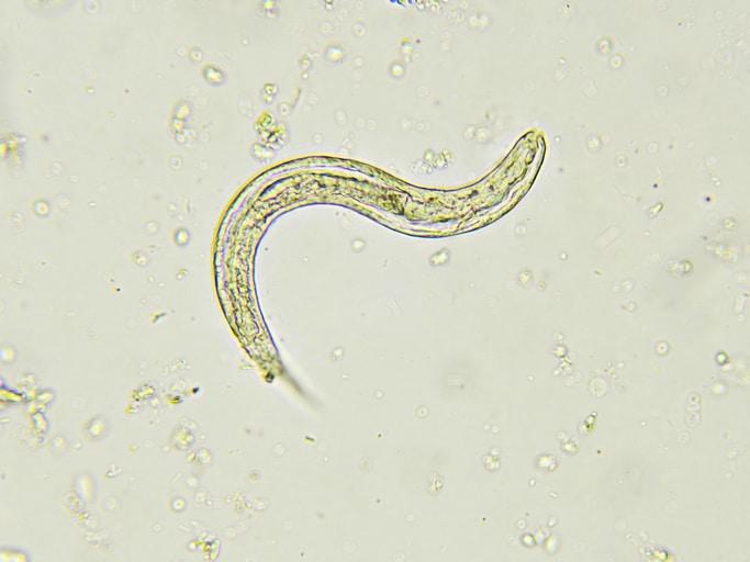 Giardiaza Giardia ,metronidazol + din viermi - Parazit ve strevech