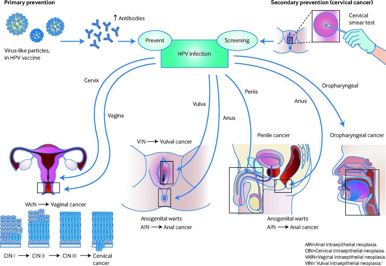 Human papillomavirus oncogenes