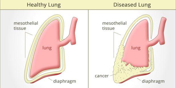 peritoneal cancer radiation