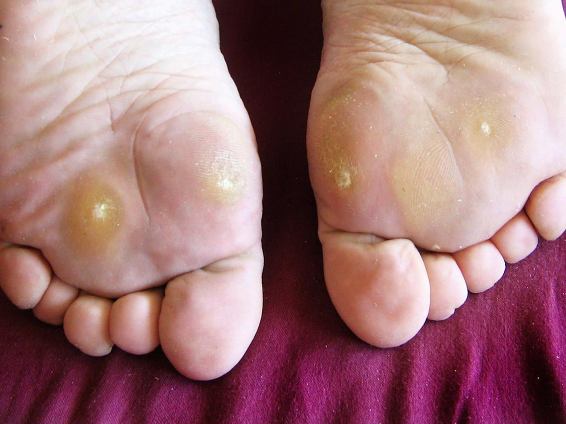 plantar wart treatment)