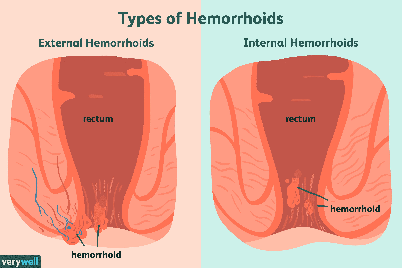 rectal cancer or hemorrhoid