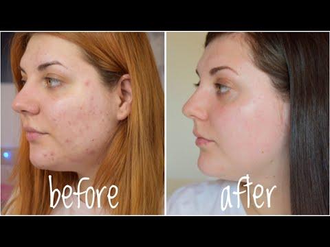 remedii parazite pentru acnee)