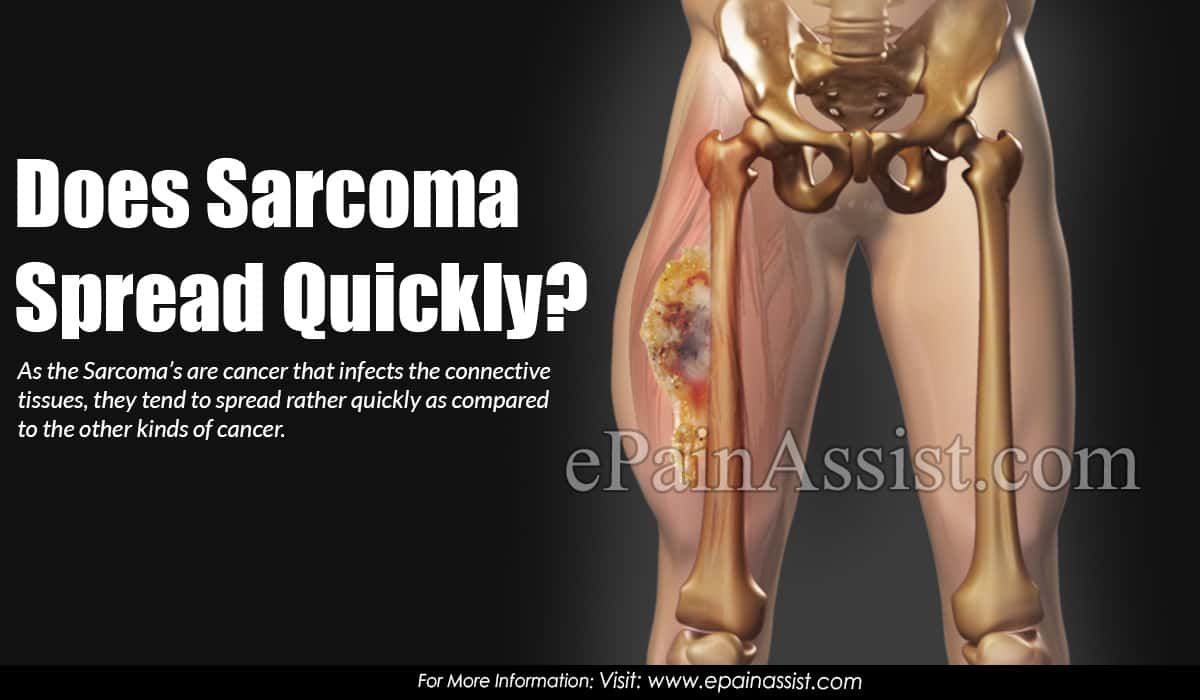 sarcoma cancer cure)