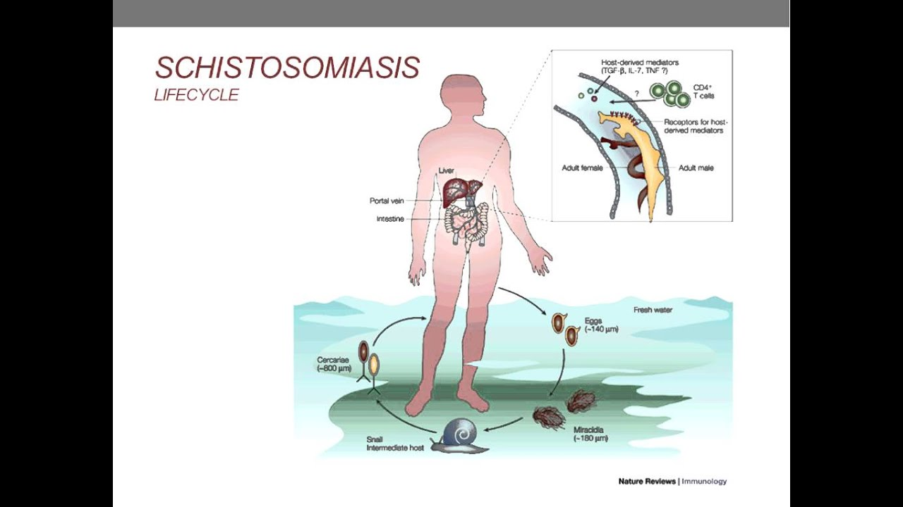 schistosomiasis natural treatment)