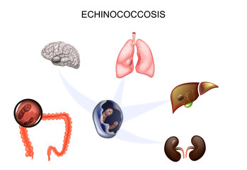 simptome pulmonare cu vierme rotunde la copii