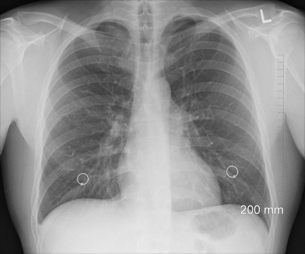 simptome pulmonare și tratament)