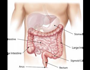 Enterobiaza